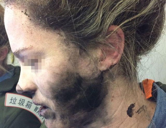 Des écouteurs explosent au visage d'une jeune femme !
